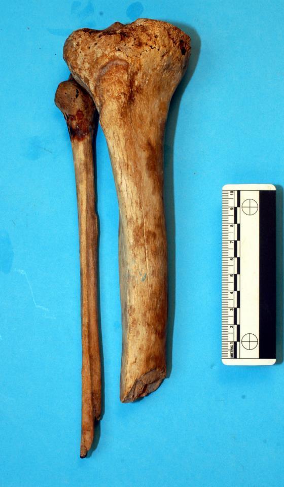 Tibia e Fibula della gamba destra di Giovanni della Bande Nere con i segni della ferita e dell'amputazione subita